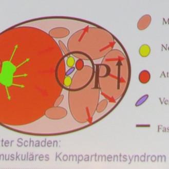 Ausschnitt aus Folie: Neuromuskuläres Kompartmentsyndrom (Folie © Dr. Wolfgang Kehler (TiHo)/bpt-Kongress München / Foto: WiSiTiA/aw)