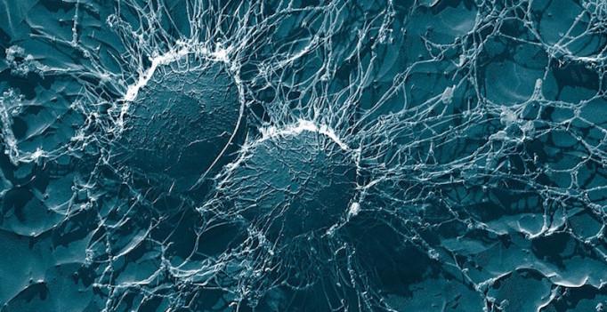 Staphylococcus aureus – sekundärelektronenmikroskopische Aufnahme. (© Eric Erbe, Christopher Pooley - U. S. Department of Agriculture)
