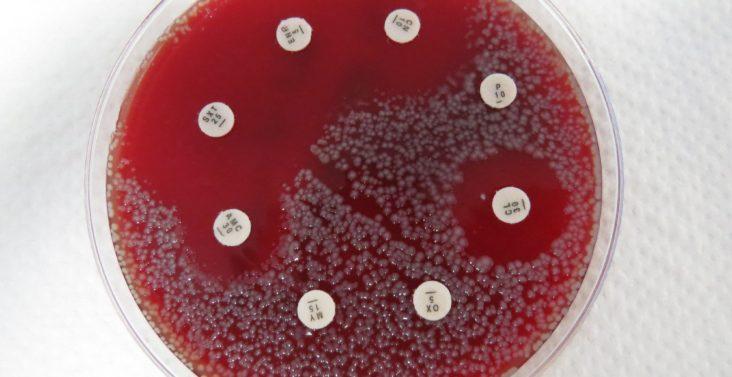 Bakterienwachstum auf Blut-Agar-Platte