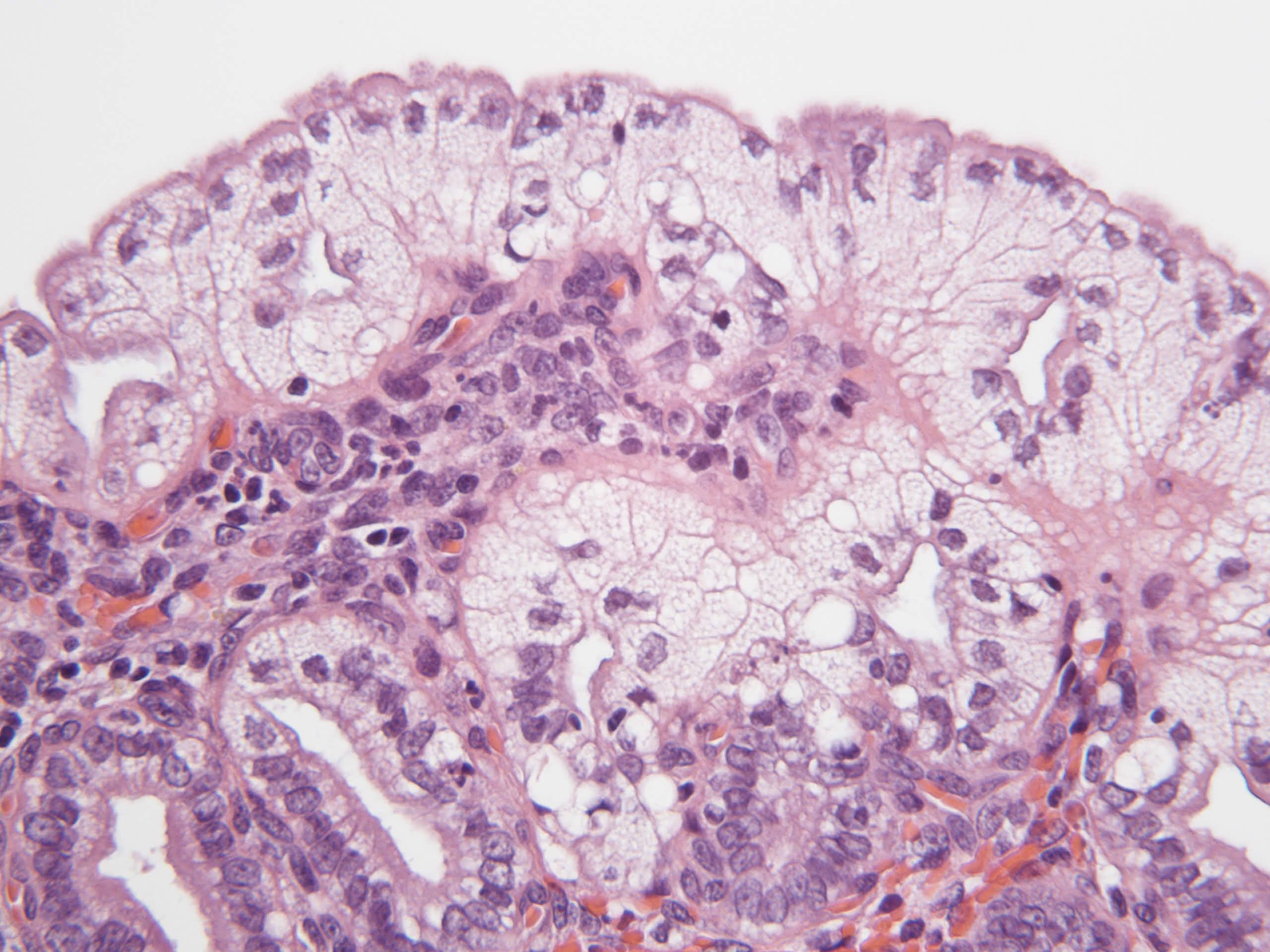 """Unter dem Mikroskop wirken Schaumzellen mit ihren Fettdepots """"zerfranst"""". Ein Rezeptor hilft beim Fett sammeln, lockt aber auch Bakterien an: Infektionsgefahr. (Foto: © Cordula Gabriel / Vetmeduni Vienna)"""